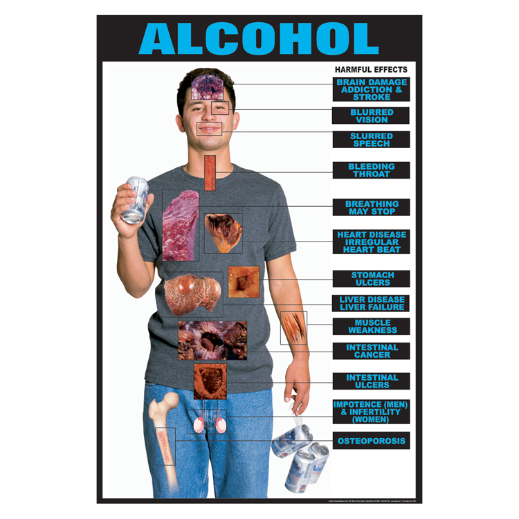 Marijuana Brain Damage >> Drug Education Series of Posters: Alcohol