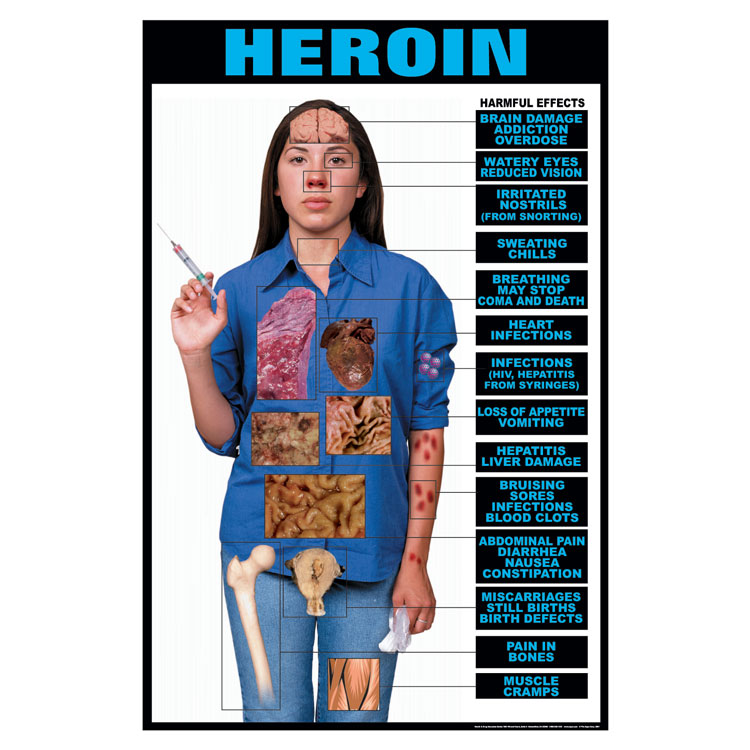 Drug Education Series of Posters:  Heroin